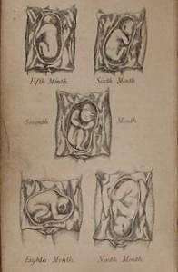 Manual antiguo de obstetricia